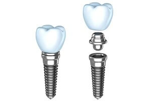 Single Dental Implants in Westport, CT