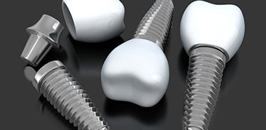Dental Implants in Westport