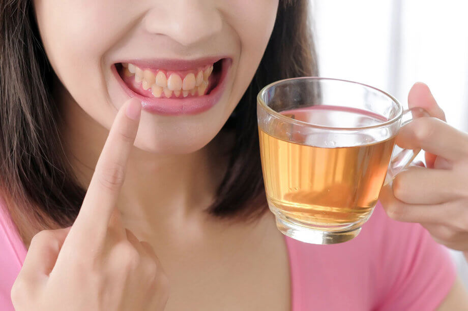 6 Foods and Drinks That Are Notorious for Tooth Discoloration