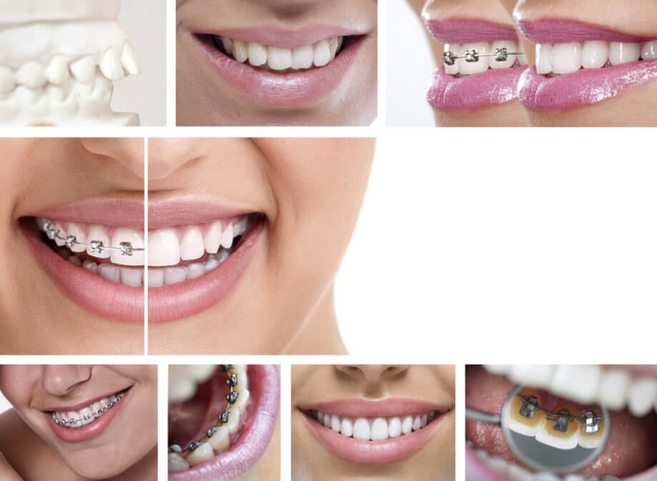 Top 10 Invisalign Questions & Answers