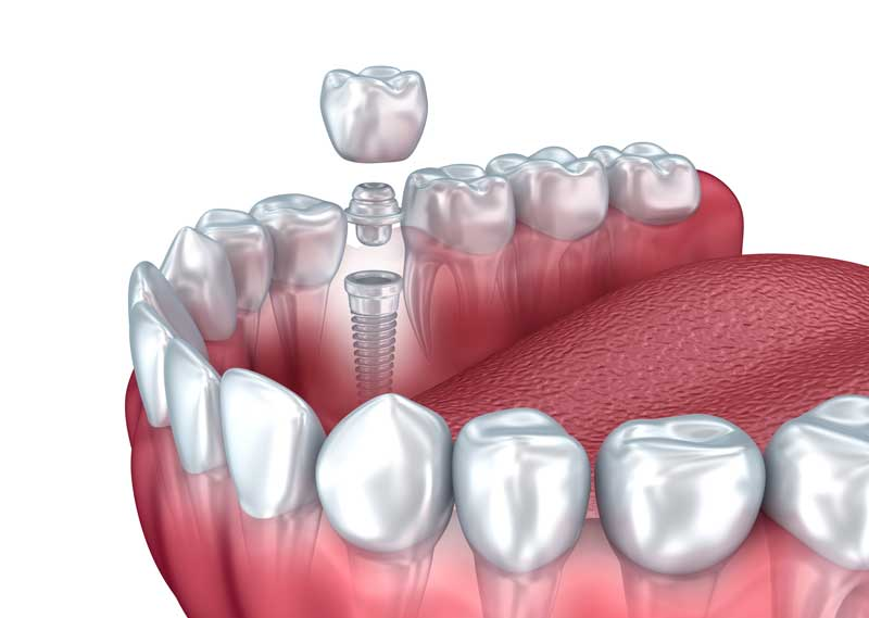 Dental Implants in Westport, CT