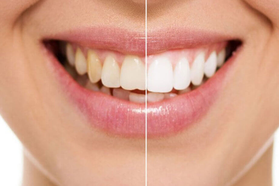 5 Foods and Drinks That Are Notorious for Tooth Discoloration